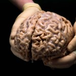 20 интересных фактов о мозге